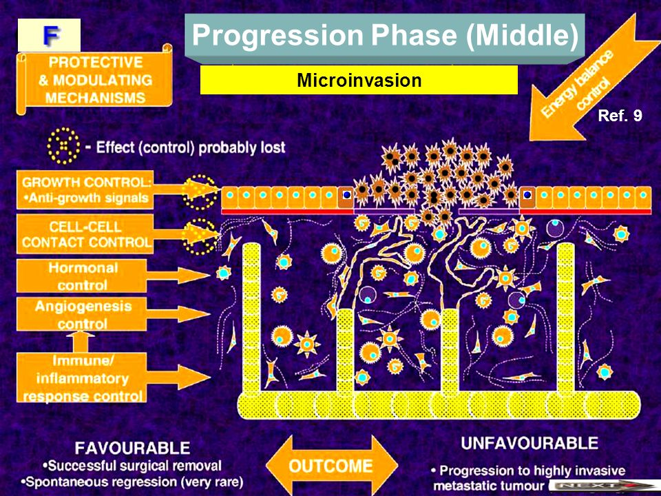 Progression Phase (Middle) Microinvasion Ref. 9
