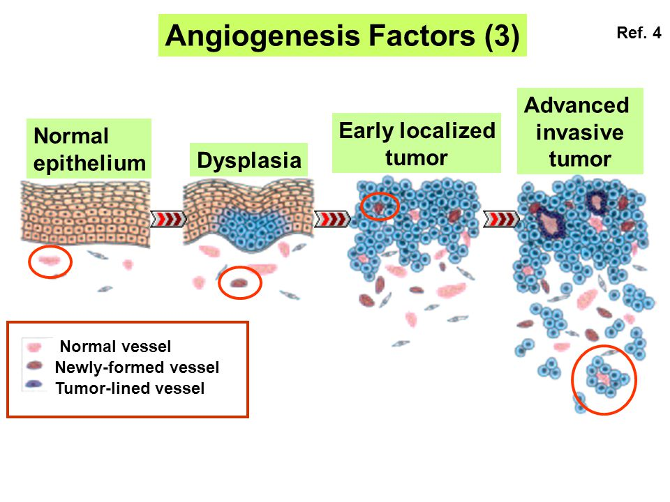 Angiogenesis Factors (3) Normal epithelium Dysplasia Early localized tumor Advanced invasive tumor Normal vessel Newly-formed vessel Tumor-lined vessel Ref.