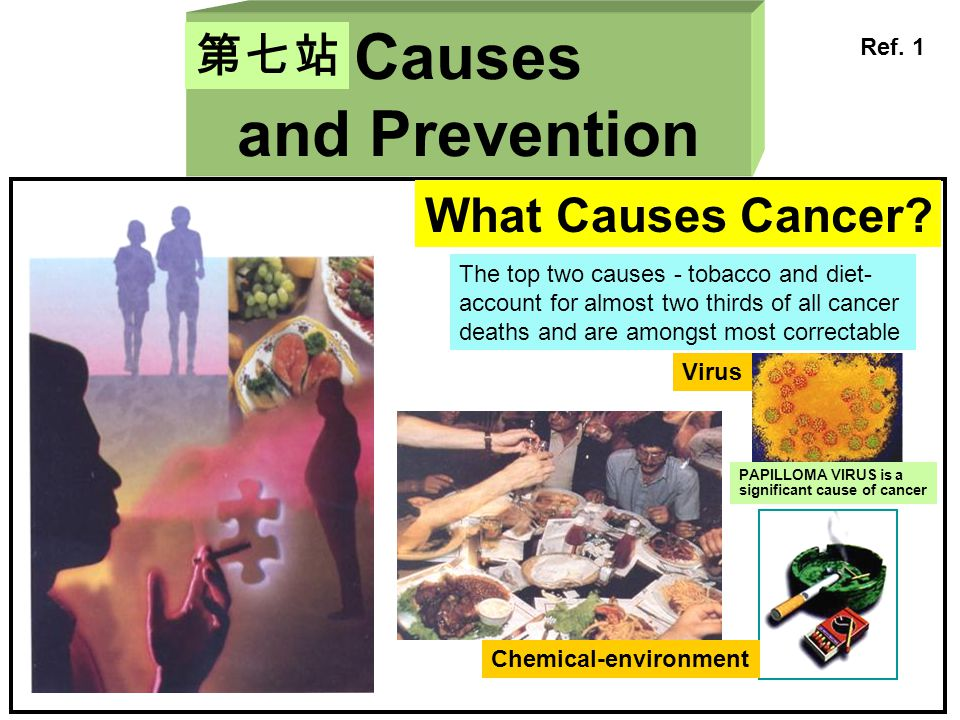 Causes and Prevention 第七站 What Causes Cancer? Chemical-environment Virus The top two causes - tobacco and diet- account for almost two thirds of all c