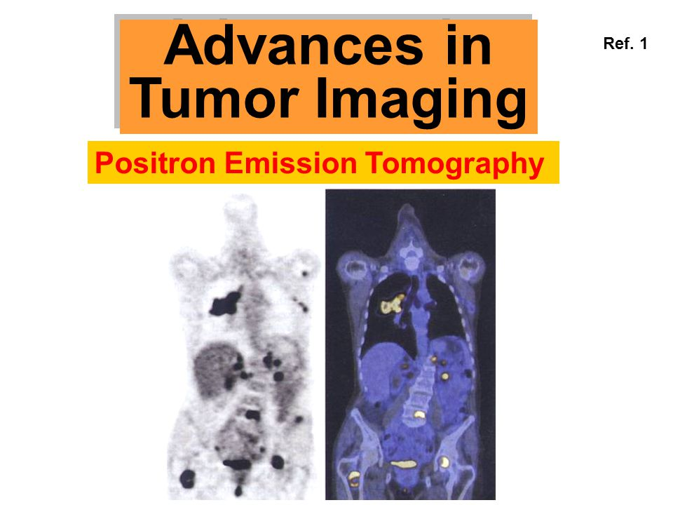 Advances in Tumor Imaging Advances in Tumor Imaging Positron Emission Tomography Ref. 1