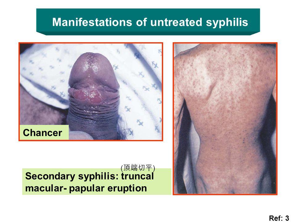 Manifestations of untreated syphilis Chancer Ref: 3 Secondary syphilis: truncal macular- papular eruption ( 頂端切平 )
