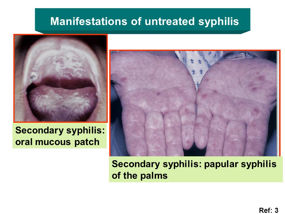 Manifestations of untreated syphilis Secondary syphilis: oral mucous patch Secondary syphilis: papular syphilis of the palms Ref: 3