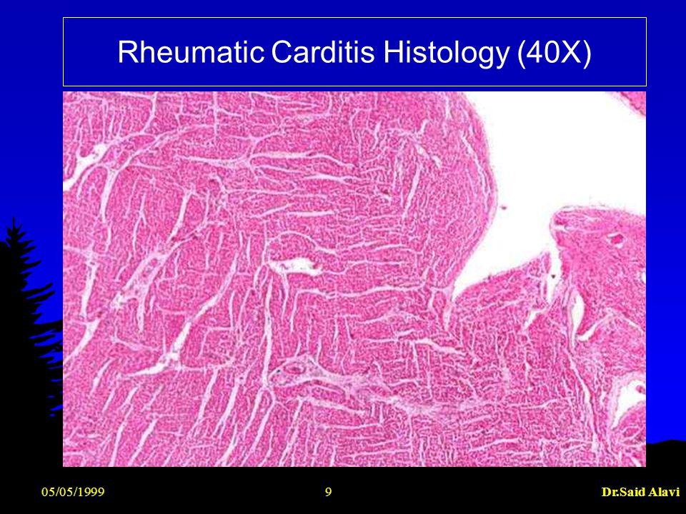 05/05/1999Dr.Said Alavi20 Laboratory Findings (Contd) l ECG- prolonged PR interval, 2nd or 3rd degree blocks,ST depression, T inversion l 2D Echo cardiography- valve edema,mitral regurgitation, LA & LV dilatation,pericardial effusion,decreased contractility