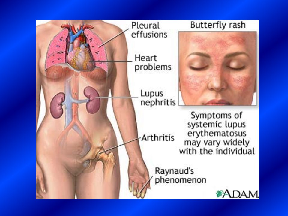 LUPUS ERYTHEMATOSUS LUPUS ERYTHEMATOSUS CONSTITUTIONAL FINDINGS  fever (fever due to infection must be differentiated from fever due to SLE.
