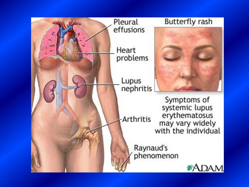 HEMATOLOGIC FINDINGS  the lupus anticoagulant, leads to a mild prolongation of the prothrombin time and a more significant prolongation of the partial thromboplastin time.