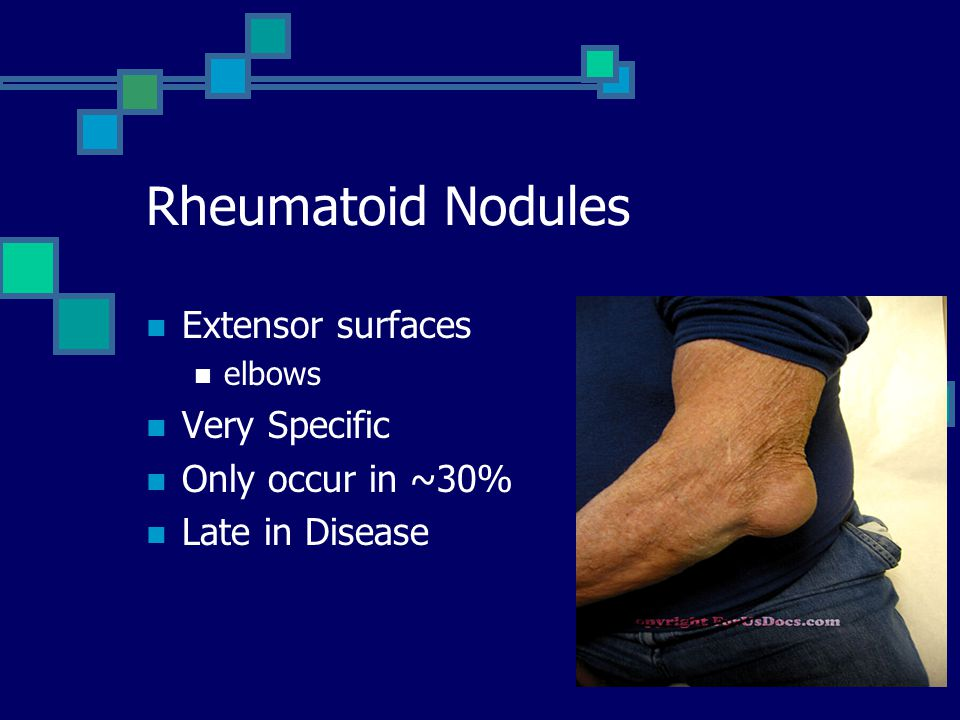 Rheumatoid Nodules Extensor surfaces elbows Very Specific Only occur in ~30% Late in Disease