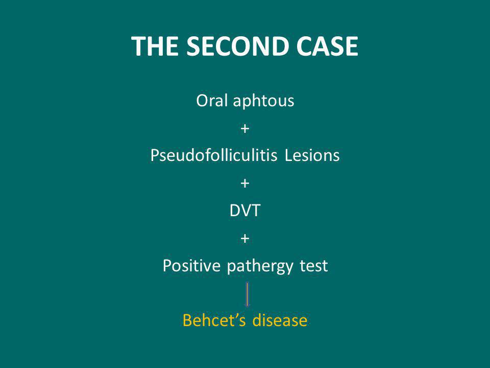 THE SECOND CASE Oral aphtous + Pseudofolliculitis Lesions + DVT + Positive pathergy test Behcet's disease