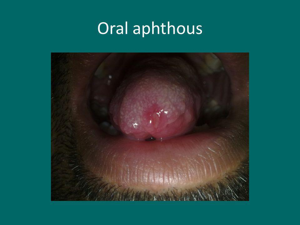 Oral aphthous