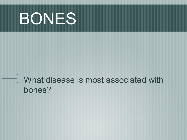 BONES What disease is most associated with bones?