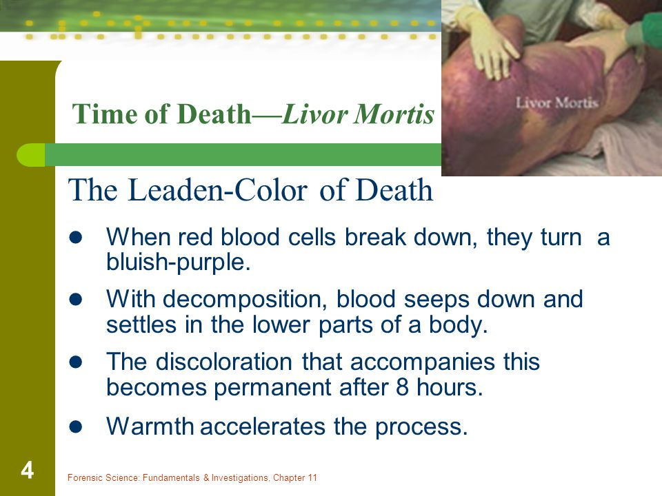 Forensic Science: Fundamentals & Investigations, Chapter 11 4 Time of Death—Livor Mortis The Leaden-Color of Death When red blood cells break down, th