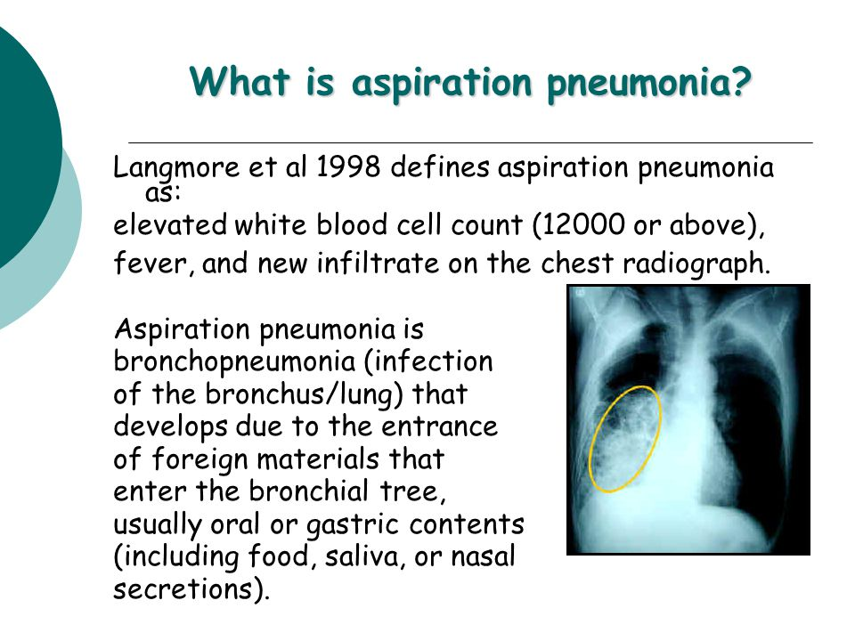 What is aspiration pneumonia.