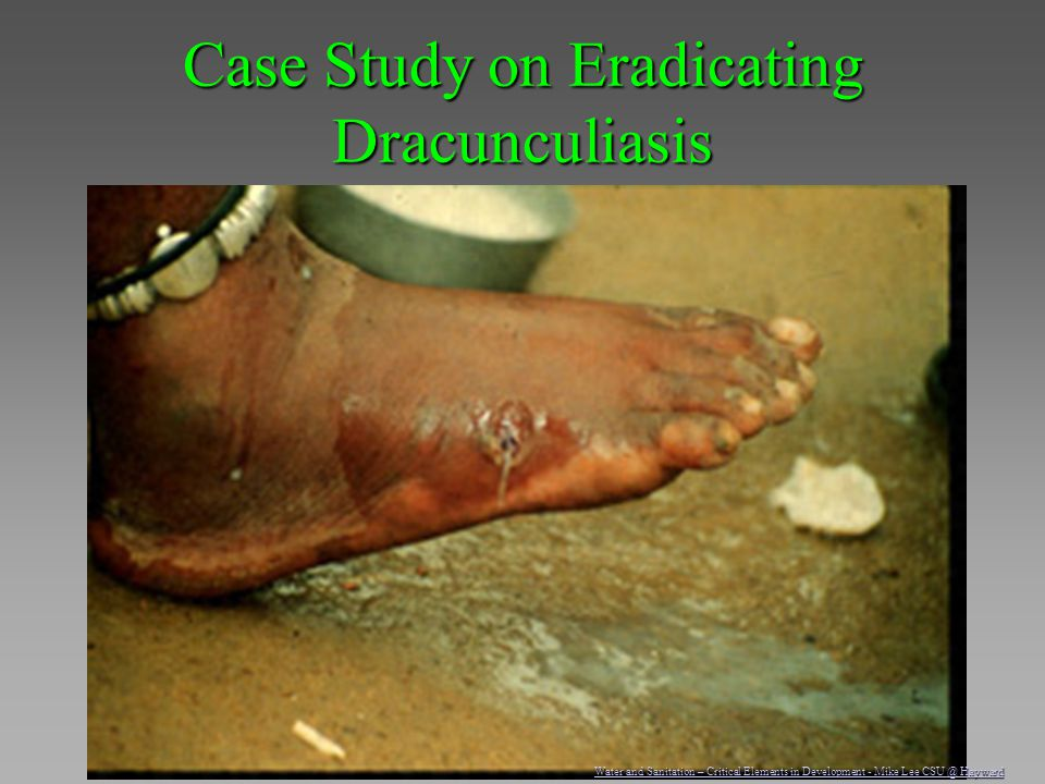 Case Study on Eradicating Dracunculiasis Water and Sanitation – Critical Elements in Development - Mike Lee CSU @ Hayward Water and Sanitation – Criti