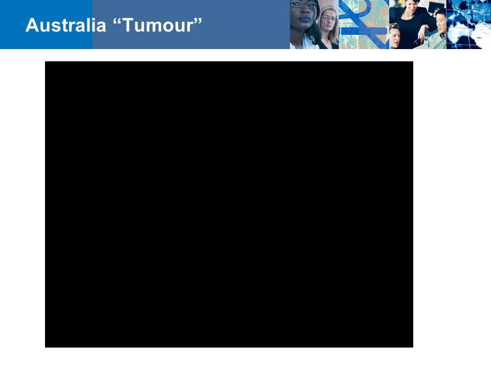"""Australia """"Tumour"""""""