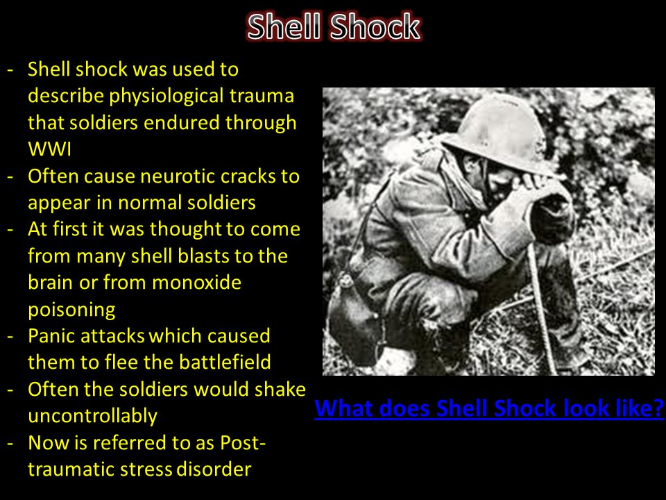 -Shell shock was used to describe physiological trauma that soldiers endured through WWI -Often cause neurotic cracks to appear in normal soldiers -At first it was thought to come from many shell blasts to the brain or from monoxide poisoning -Panic attacks which caused them to flee the battlefield -Often the soldiers would shake uncontrollably -Now is referred to as Post- traumatic stress disorder What does Shell Shock look like?