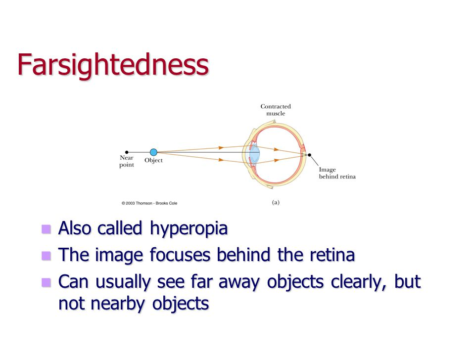 Farsightedness Also called hyperopia The image focuses behind the retina Can usually see far away objects clearly, but not nearby objects
