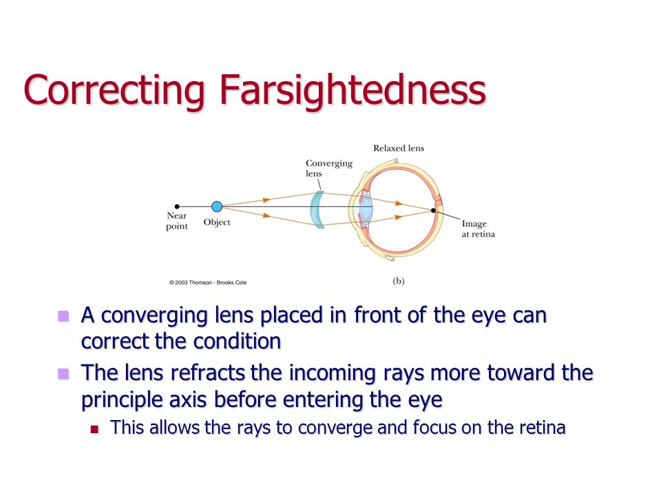 Correcting Farsightedness A converging lens placed in front of the eye can correct the condition The lens refracts the incoming rays more toward the p