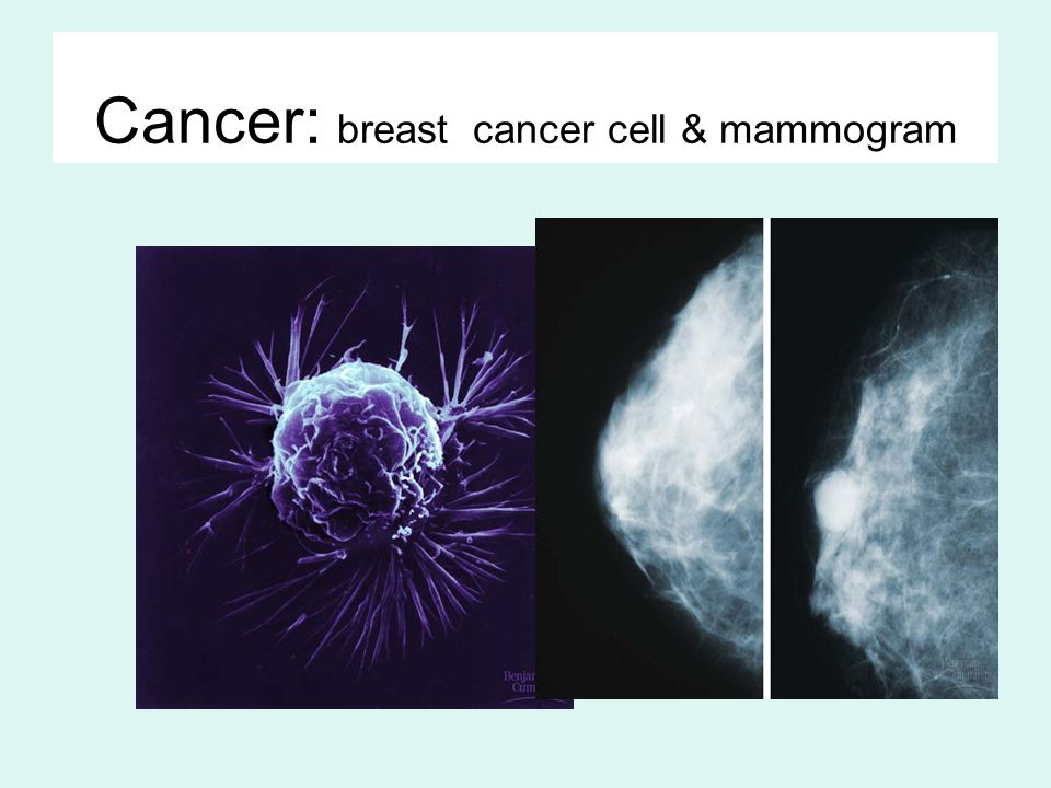 Tumors Mass of abnormal cells –Benign tumor abnormal cells remain at original site as a lump –p53 has halted cell divisions most do not cause serious problems & can be removed by surgery –Malignant tumor cells leave original site –lose attachment to nearby cells –carried by blood & lymph system to other tissues –start more tumors = metastasis impair functions of organs throughout body
