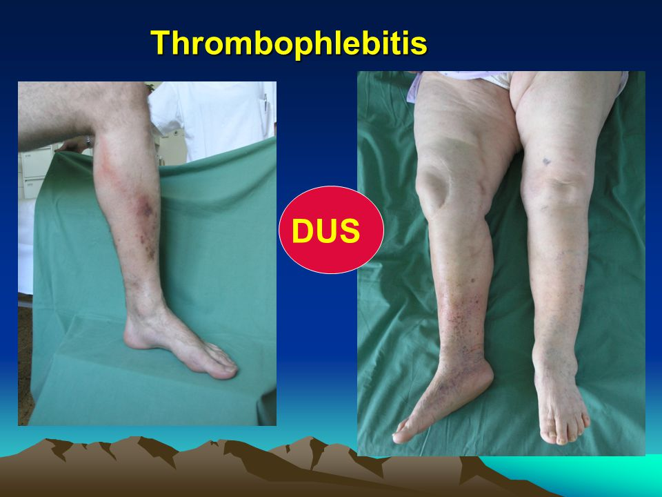 Thrombophlebitis Thrombophlebitis DUS