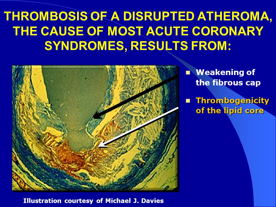 THROMBOSIS OF A DISRUPTED ATHEROMA, THE CAUSE OF MOST ACUTE CORONARY SYNDROMES, RESULTS FROM: Weakening of the fibrous cap Thrombogenicity of the lipi