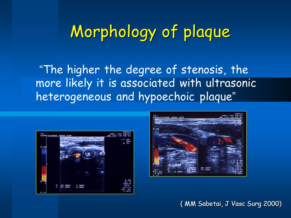 "Morphology of plaque "" The higher the degree of stenosis, the more likely it is associated with ultrasonic heterogeneous and hypoechoic plaque "" ( MM"