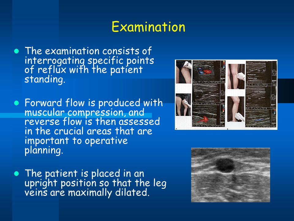 Examination The examination consists of interrogating specific points of reflux with the patient standing. Forward flow is produced with muscular comp