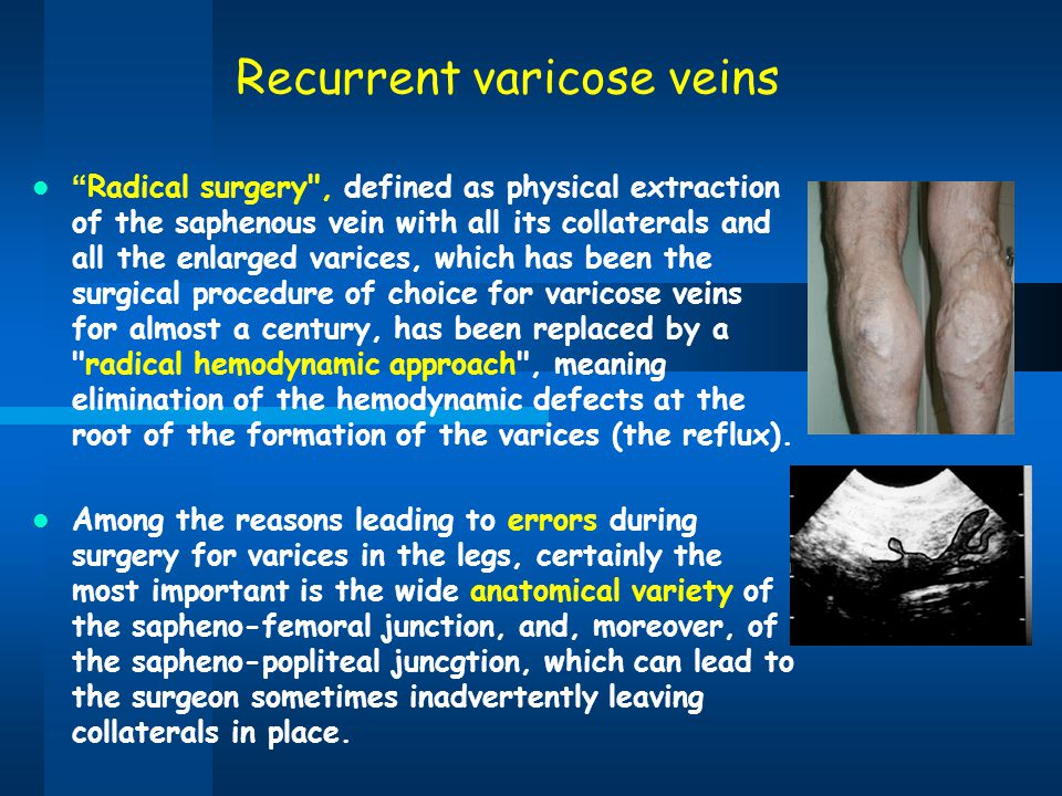 "Recurrent varicose veins "" Radical surgery"