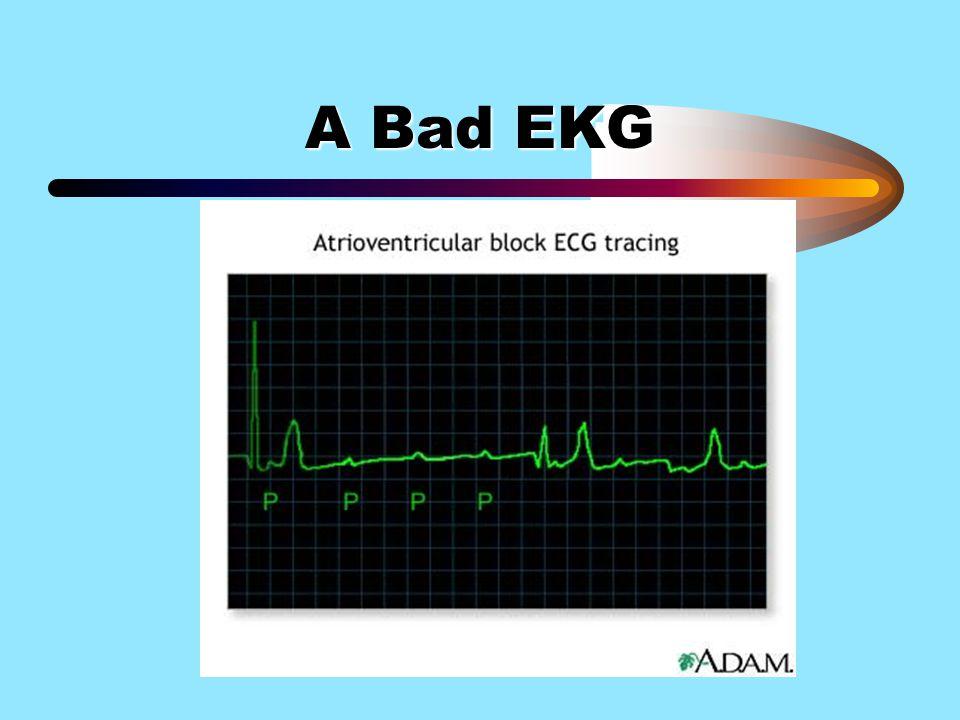 A Bad EKG