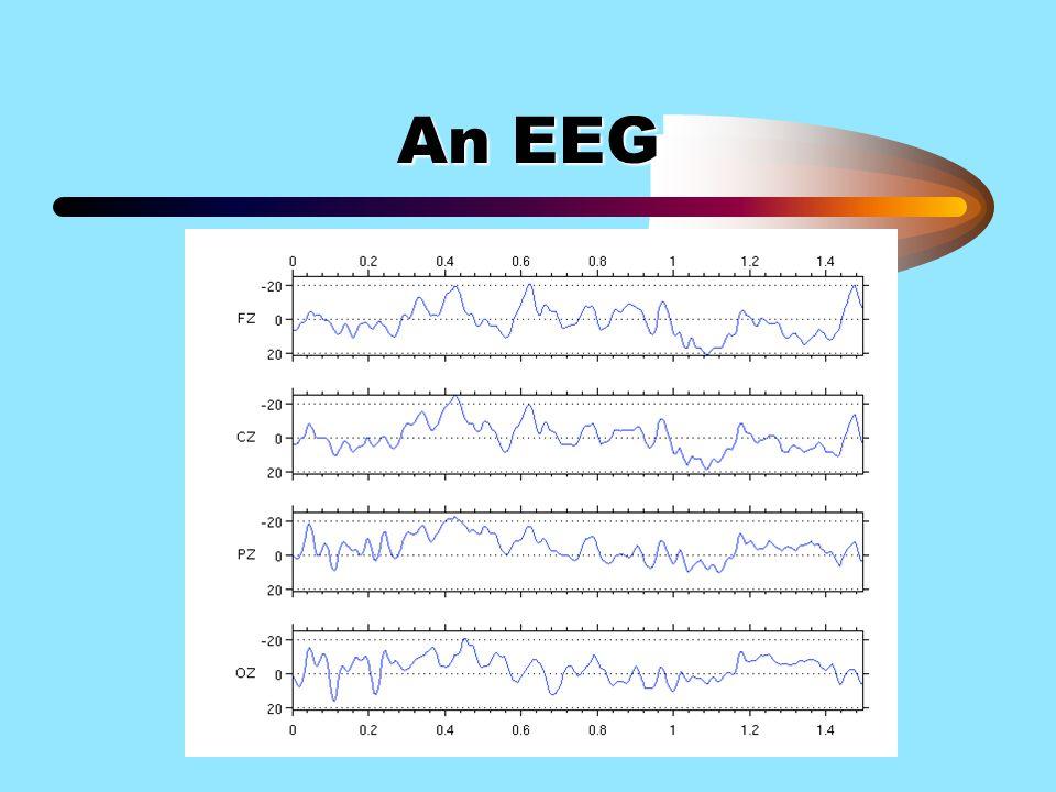 An EEG