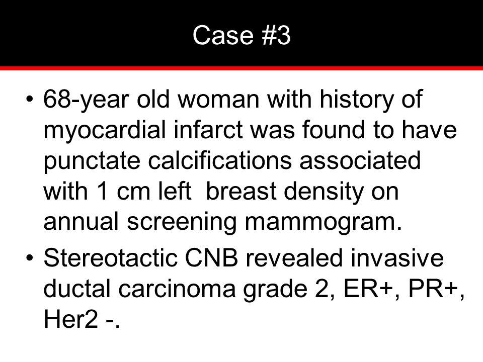 Case #3 68-year old woman with history of myocardial infarct was found to have punctate calcifications associated with 1 cm left breast density on annual screening mammogram.