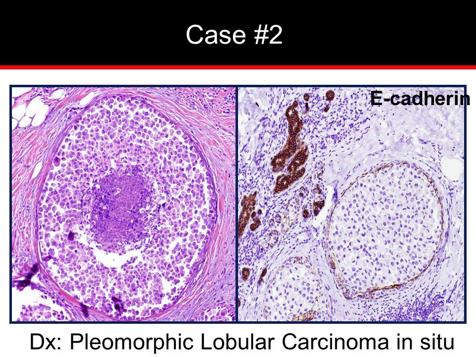 Dx: Pleomorphic Lobular Carcinoma in situ Case #2 E-cadherin