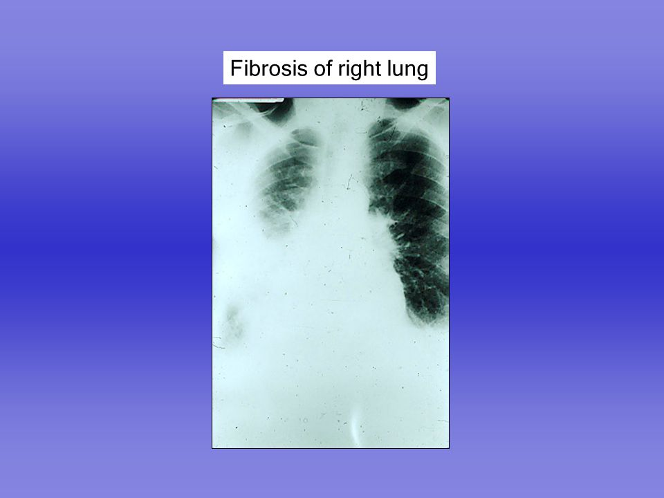 Fibrosis of right lung