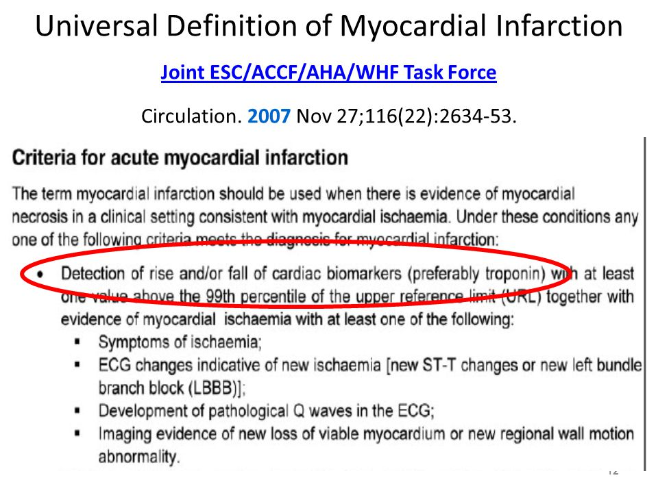 12 Universal Definition of Myocardial Infarction Joint ESC/ACCF/AHA/WHF Task Force Circulation.