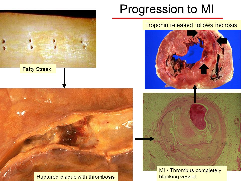 2 Progression to MI Troponin released follows necrosis MI - Thrombus completely blocking vessel Fatty Streak Ruptured plaque with thrombosis