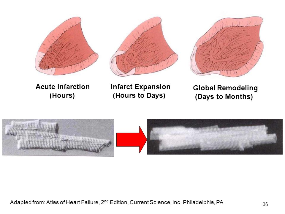 36 Acute Infarction (Hours) Infarct Expansion (Hours to Days) Global Remodeling (Days to Months) Adapted from: Atlas of Heart Failure, 2 nd Edition, Current Science, Inc, Philadelphia, PA
