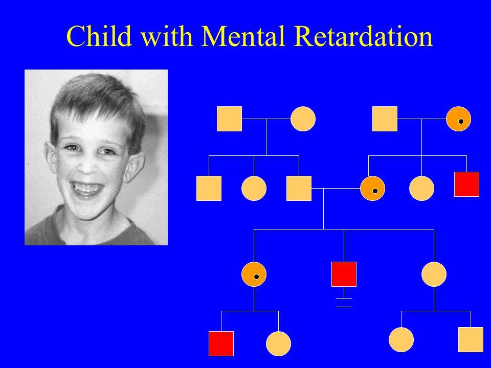 Child with Mental Retardation