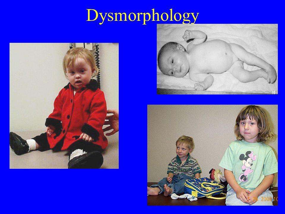 Dysmorphology
