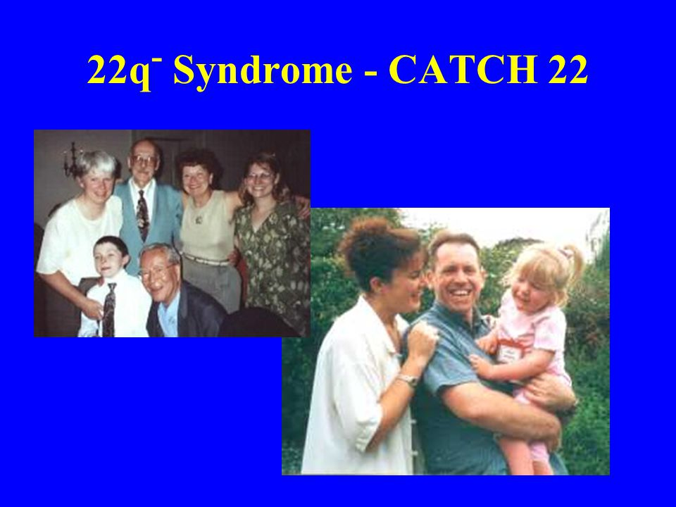 22q - Syndrome - CATCH 22