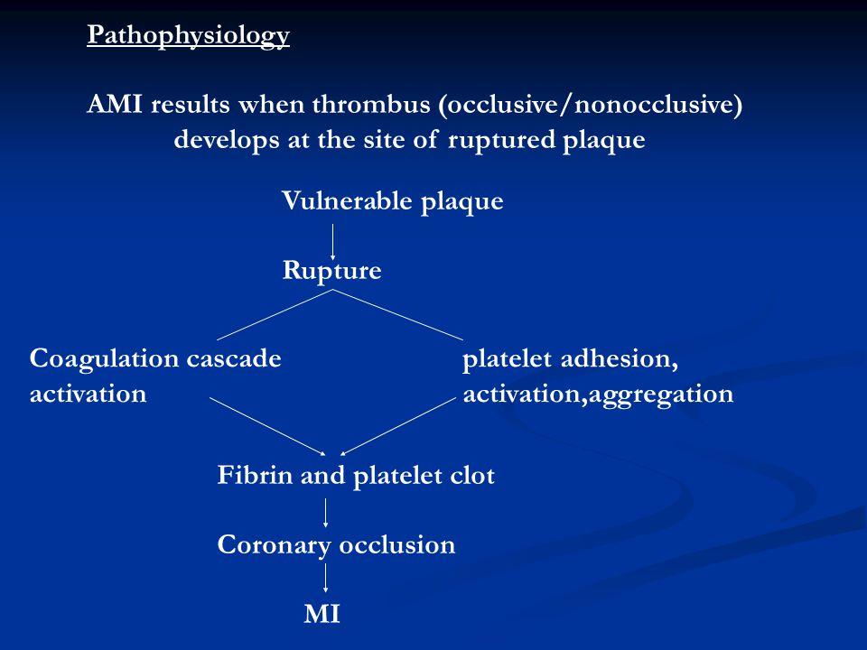 Pathophysiology AMI results when thrombus (occlusive/nonocclusive) develops at the site of ruptured plaque Vulnerable plaque Rupture Coagulation casca