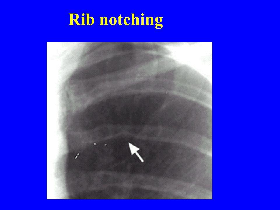 Rib notching