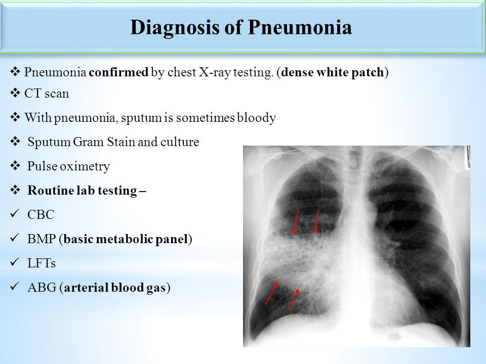 7  Pneumonia confirmed by chest X-ray testing. (dense white patch)  CT scan  With pneumonia, sputum is sometimes bloody  Sputum Gram Stain and cul