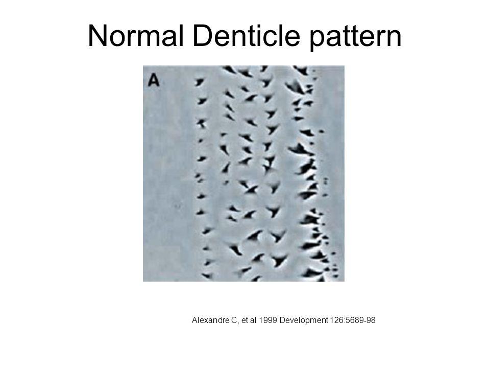 Normal Denticle pattern Alexandre C, et al 1999 Development 126:5689-98