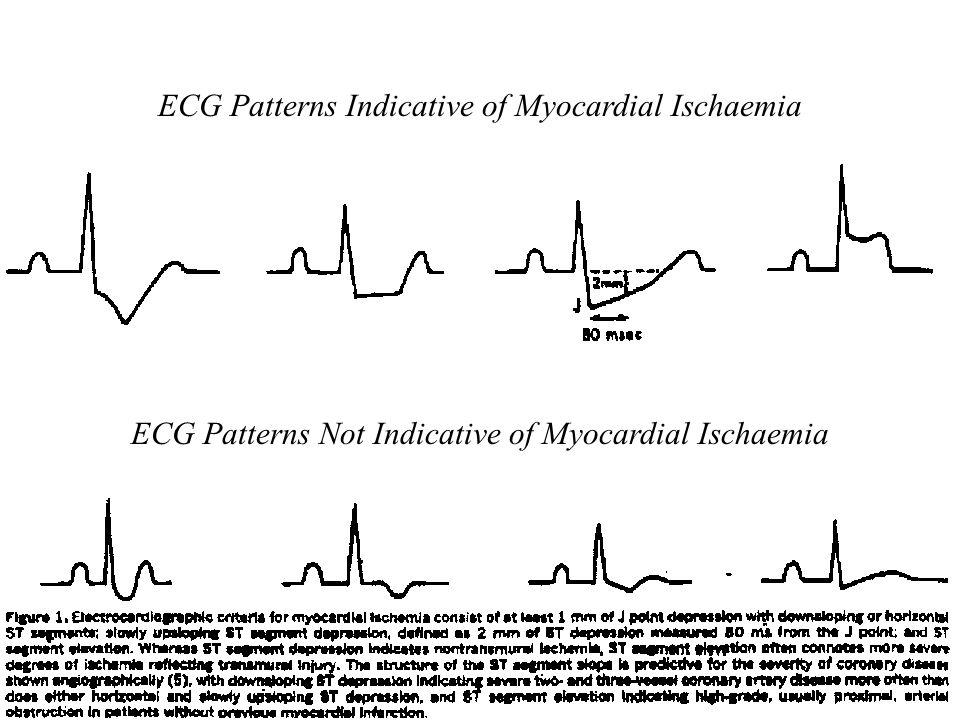 ECG Patterns Indicative of Myocardial Ischaemia ECG Patterns Not Indicative of Myocardial Ischaemia