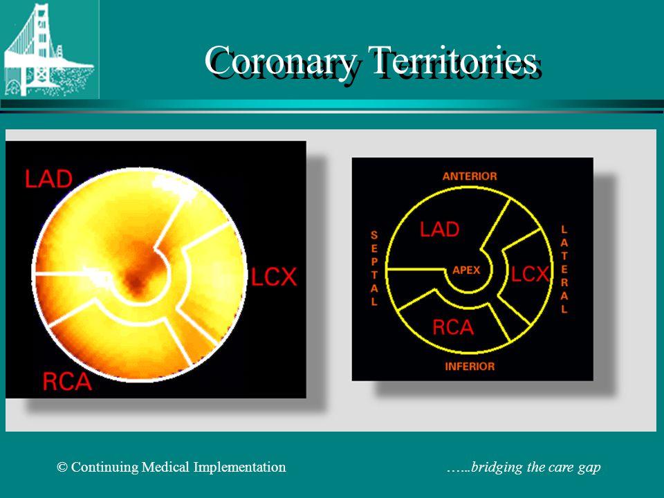 © Continuing Medical Implementation …...bridging the care gap Coronary Territories
