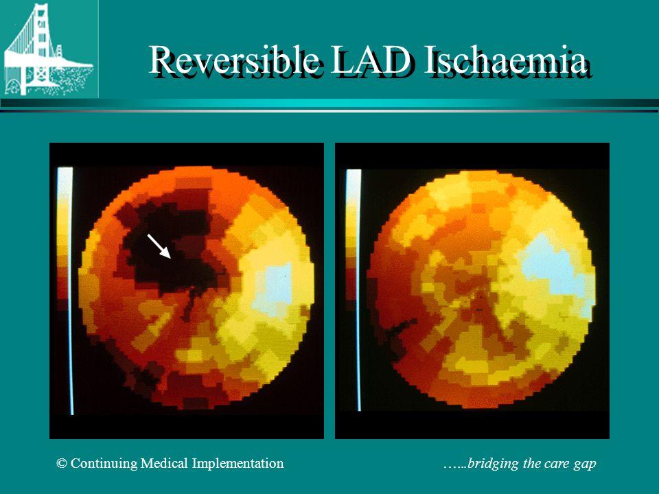 © Continuing Medical Implementation …...bridging the care gap Reversible LAD Ischaemia