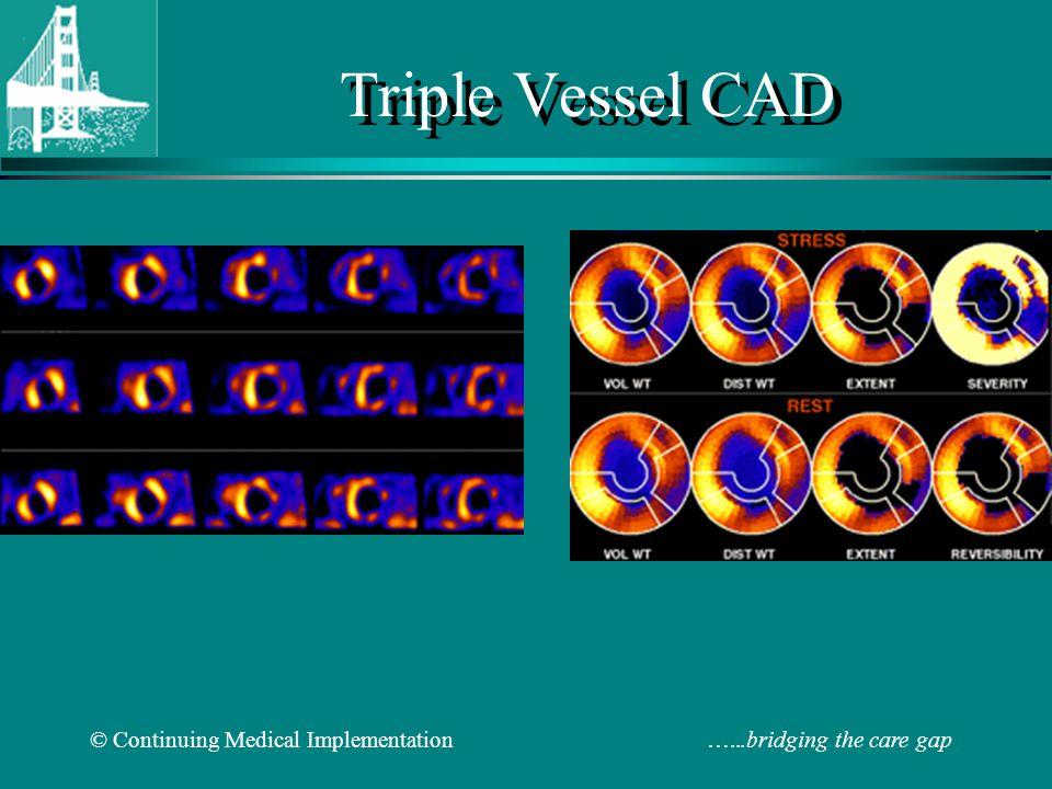 © Continuing Medical Implementation …...bridging the care gap Triple Vessel CAD