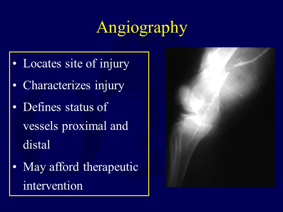 Angiography Locates site of injury Characterizes injury Defines status of vessels proximal and distal May afford therapeutic intervention