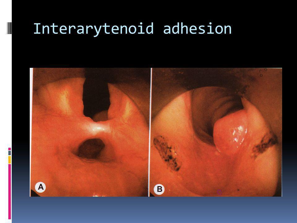 Interarytenoid adhesion