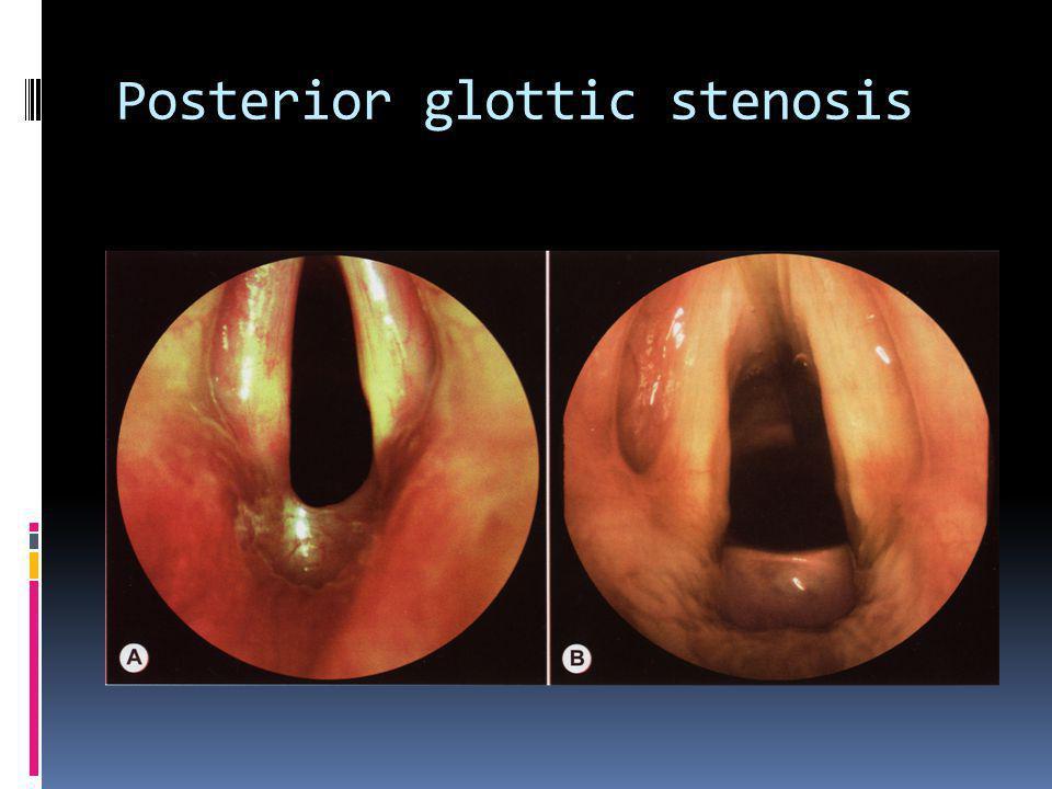 Posterior glottic stenosis
