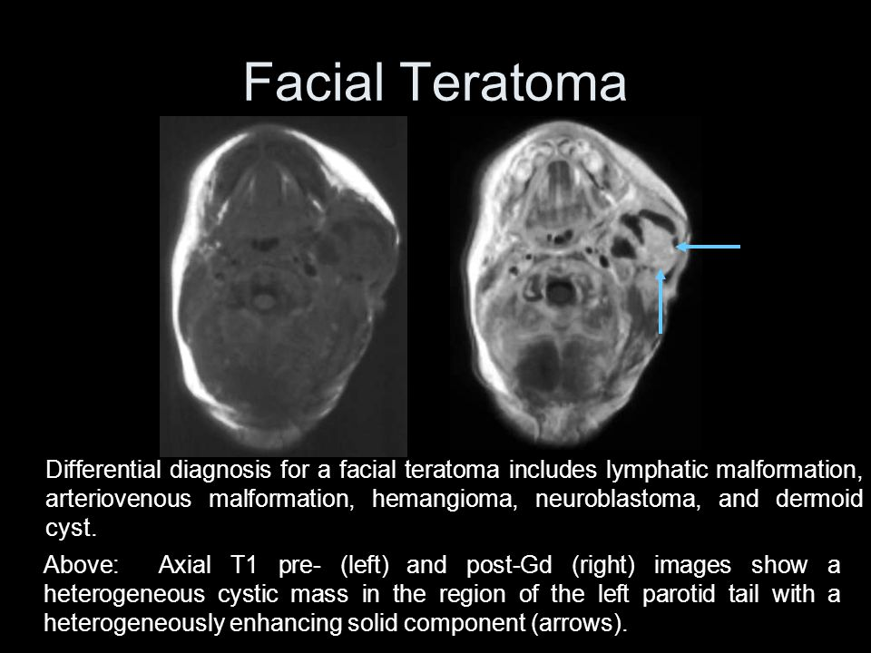 Facial Teratoma Differential diagnosis for a facial teratoma includes lymphatic malformation, arteriovenous malformation, hemangioma, neuroblastoma, and dermoid cyst.