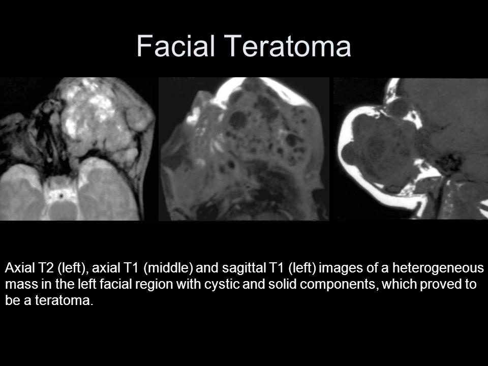 Facial Teratoma Axial T2 (left), axial T1 (middle) and sagittal T1 (left) images of a heterogeneous mass in the left facial region with cystic and solid components, which proved to be a teratoma.